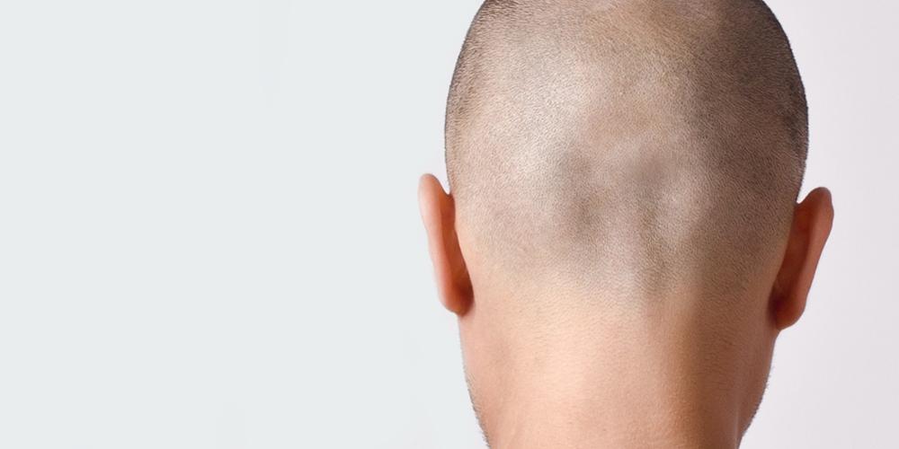 Maschere per densità e crescita di capelli con glicerina