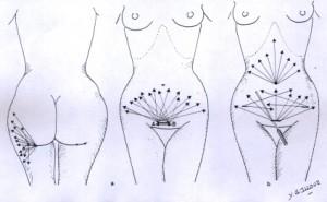 liposuzione-indicazioni