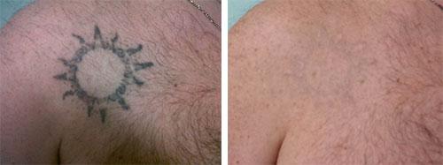 rimozione-tatuaggio