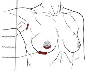 incisioni-mastoplastica
